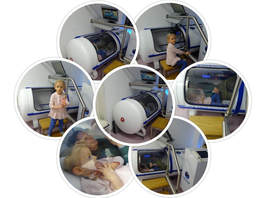 Lina v hiperbarični komori